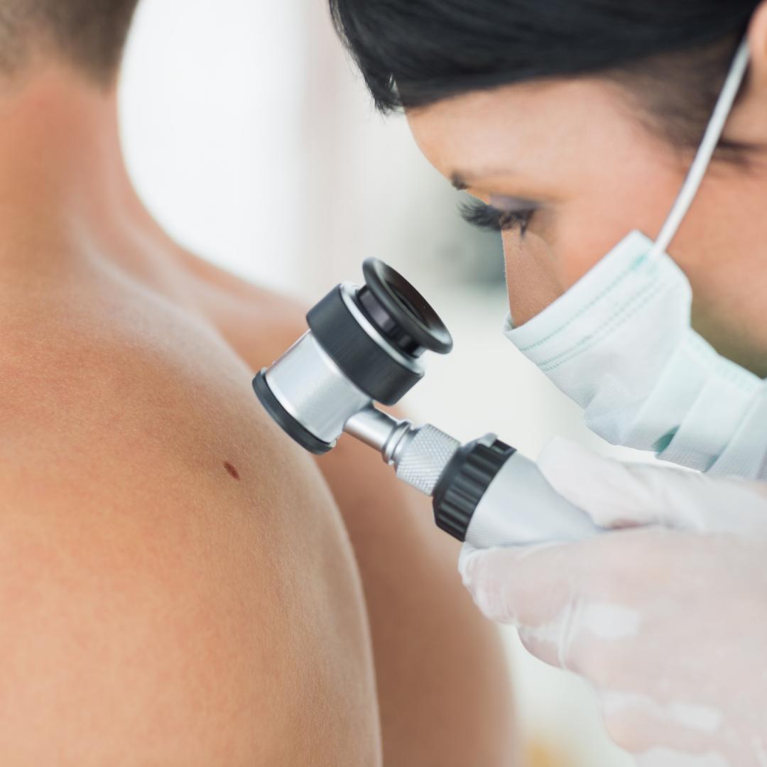 Dermatoscopia: conheça os pontos indispensáveis para o TED com a Dra. Gisele Rezze